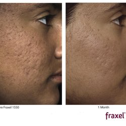 Remarkable, rather phoenix facial line removal