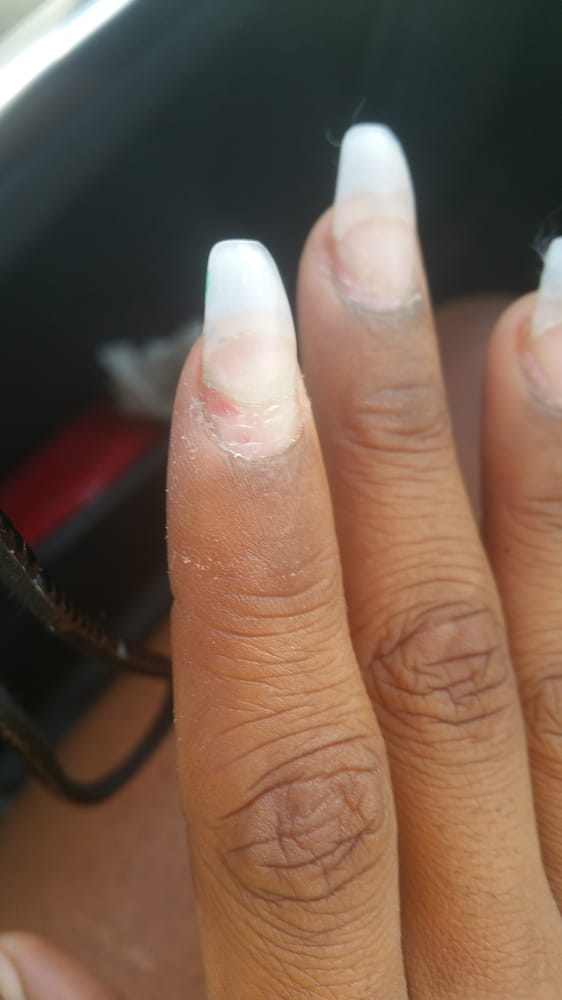 First experience, got a hole drilled into my finger nail until it ...