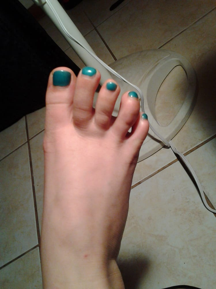 Sea green on toes 2 weeks later. - Yelp