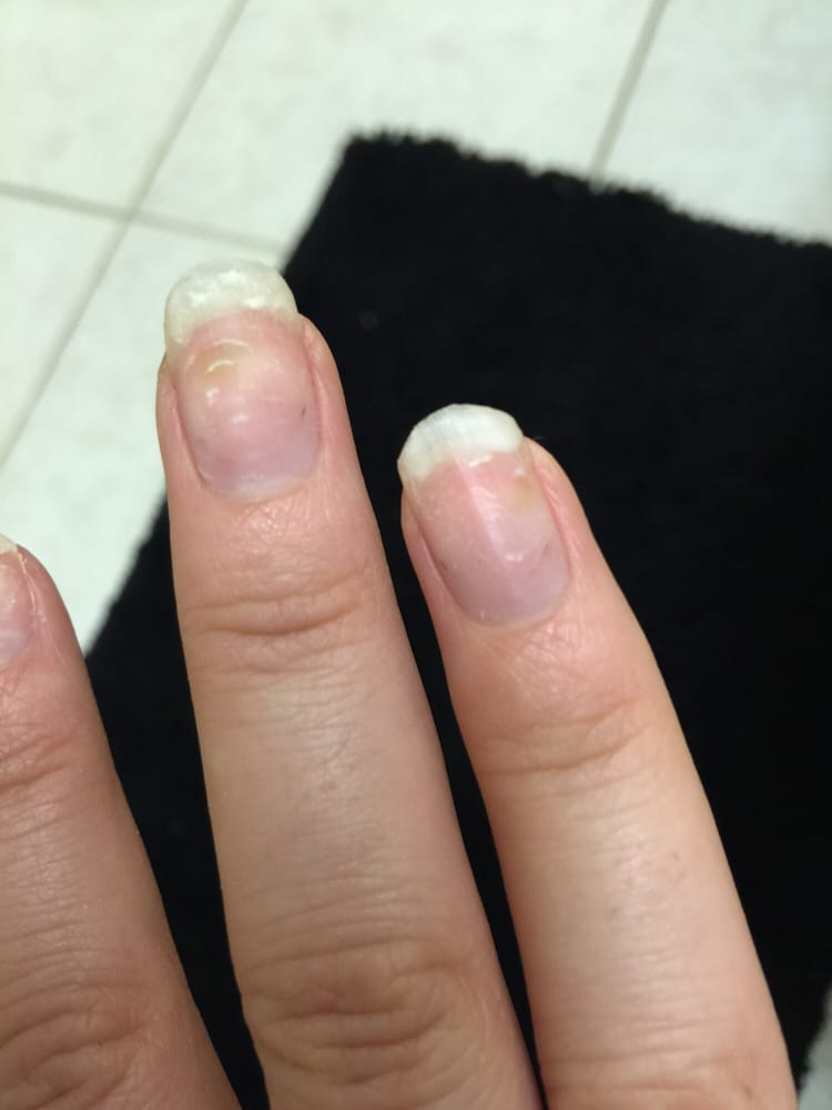 Green bacteria on both my nails after taking my acrylics off - Yelp