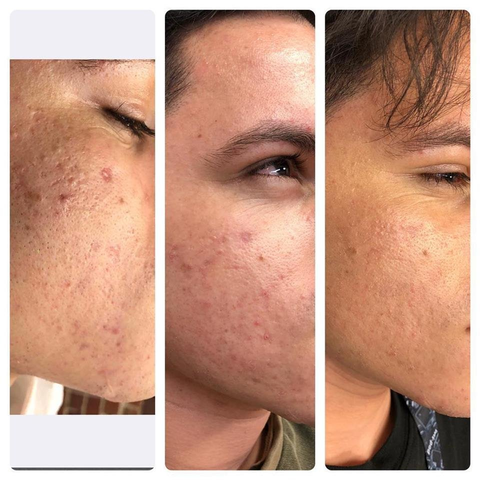 Cosmetic & Laser Center - 77 Reviews - Laser Hair Removal