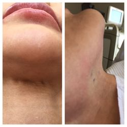 Gail Humble, MD - 14 Reviews - Cosmetic Surgeons - 909 Hyde St