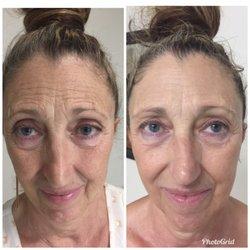 Hale Beauty - 26 Photos & 13 Reviews - Skin Care - 320 Ward