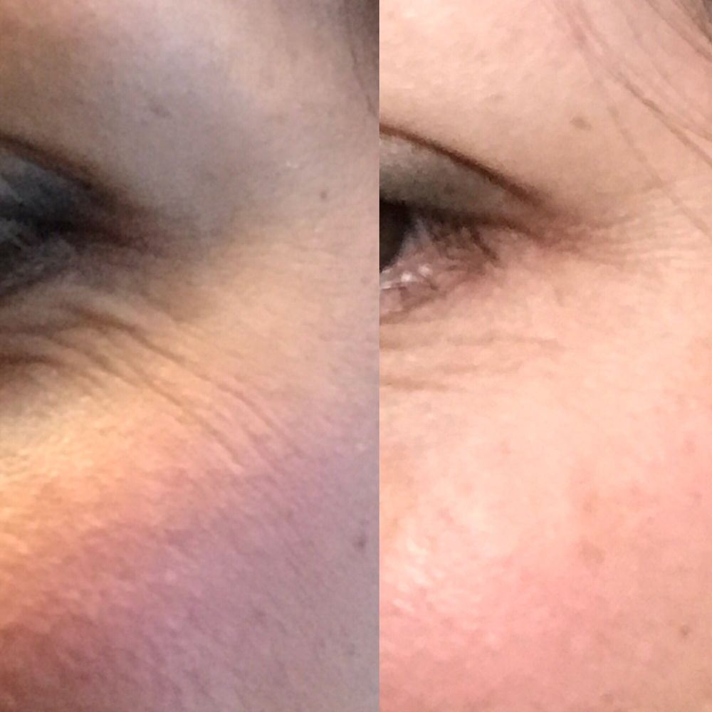 Baby Botox for the under eye crinkles! And yes, it's SUPER
