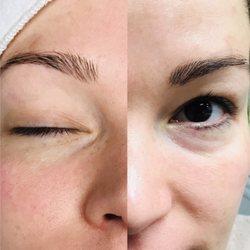 2000 epil facial hair removal uk photo