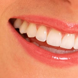 ClearChoice Dental Implant Center - CLOSED - 13 Photos ...
