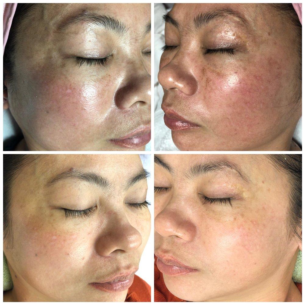 ES Skin Care - 23 Photos & 12 Reviews - Skin Care - 6772