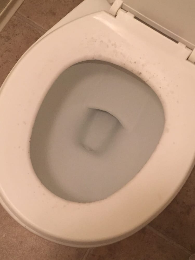 Mold on the toilet seat after we cleaned it. - Yelp