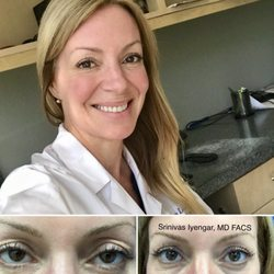 San Diego Eyelid Specialists - 108 Photos & 38 Reviews
