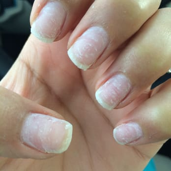 Removed The Acrylic Photo Of All For Beauty Fairfield Ca United States Nails After Having