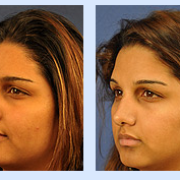 Facial plastic surgeon orlando