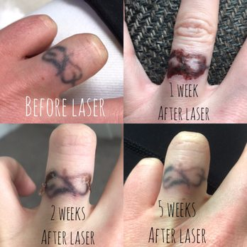 Absolute Laser Tattoo Removal - 79 Photos & 60 Reviews - Tattoo ...