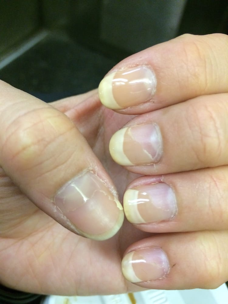1 Week 40 Gel All 5 Nails Chopping Off And Thumb Peeled Almost