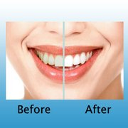 Image result for orthodontist shoreditch