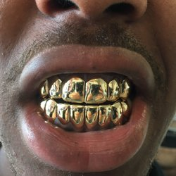 The Plug Jewelry Gold Teeth Grillz 76 Photos Jewelry 12592
