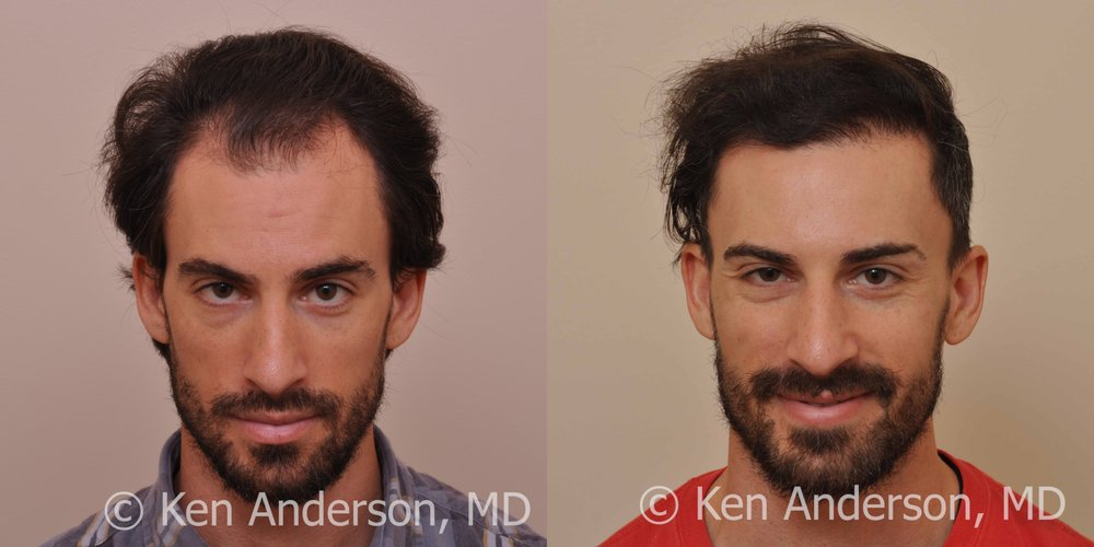 33 Year Old Man Had An Artas Robotic Hair Transplant Procedure At