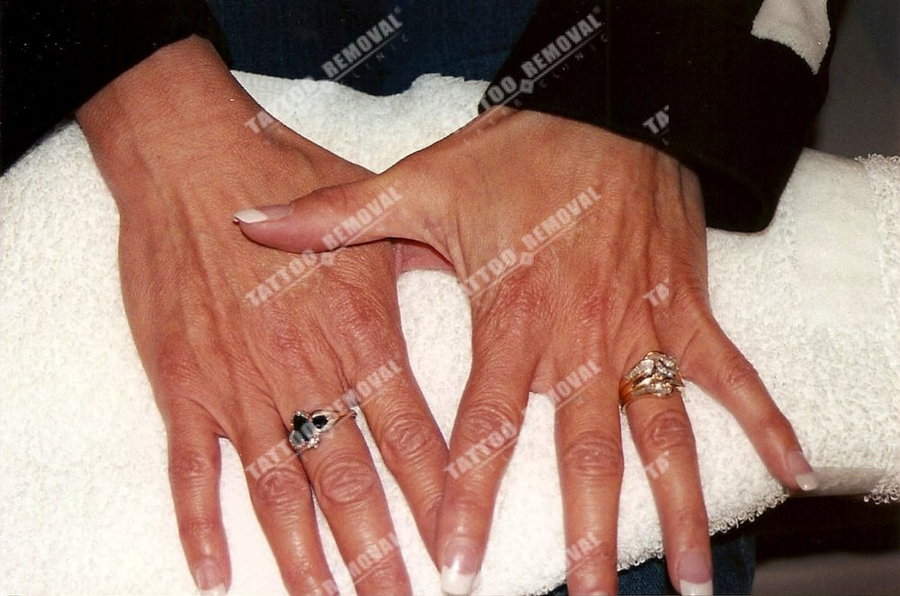 Butterfly dots on hands tattoo after laser tattoo for Tattoo la jolla