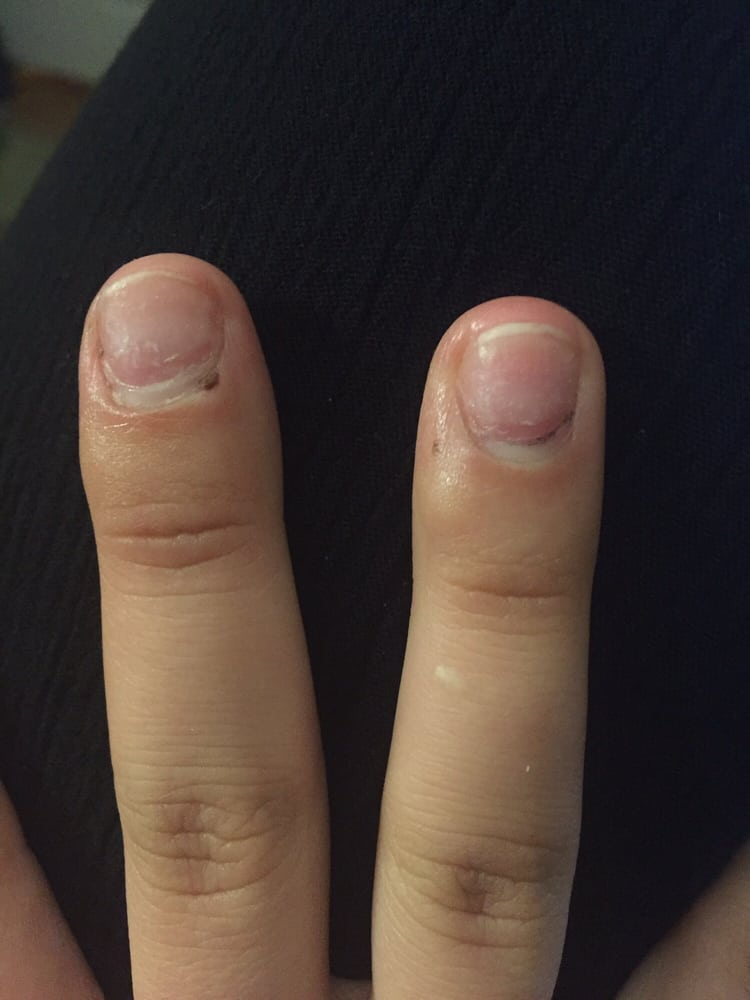Photo Of Natural Nails Ann Arbor Mi United States Dried Blood Under