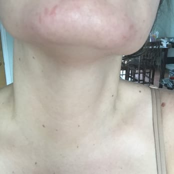 Biotone Skin Clinic - 2019 All You Need to Know BEFORE You Go (with