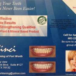 Davinci Teeth Whitening Of Fort Worth 59 Photos Teeth Whitening