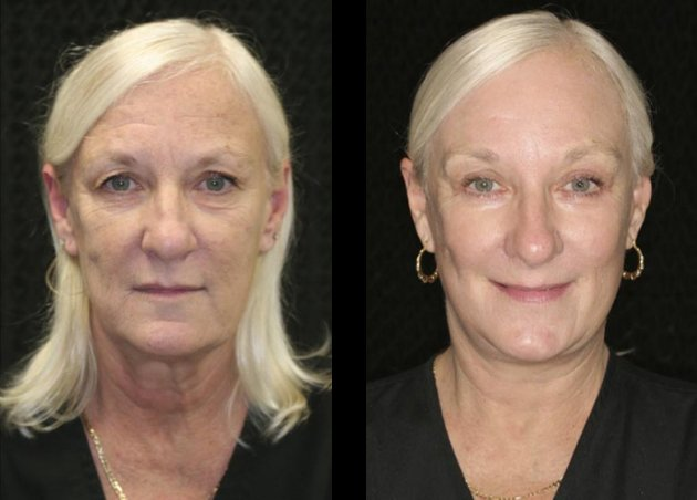 Before & After: Endoscopic Brow/Mid-Facelift, Facelift, Neck
