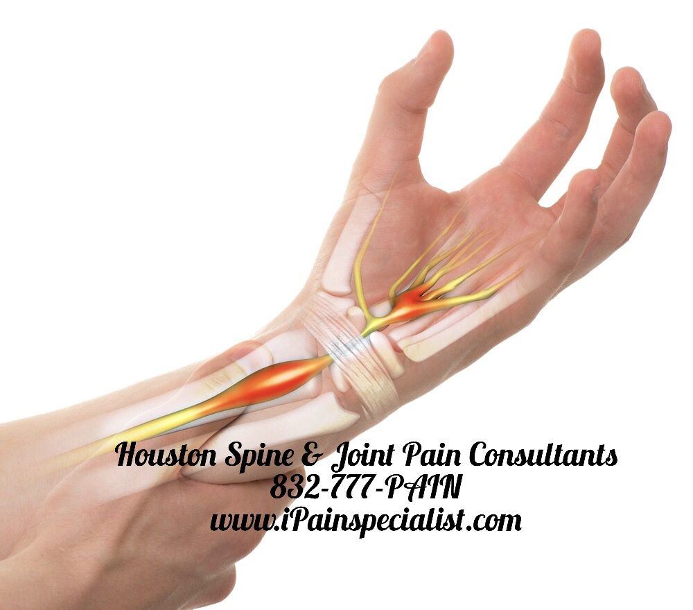 Carpal Tunnel Syndrome Pain, Pain Doctor near me, Hand Pain