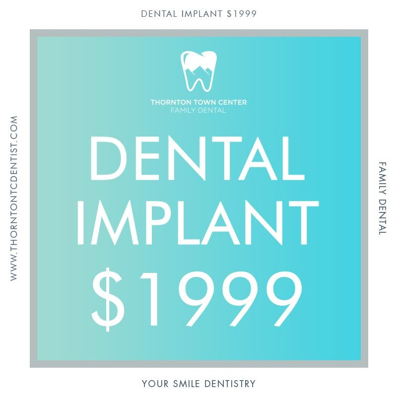 Dental Implant Promotion - Yelp