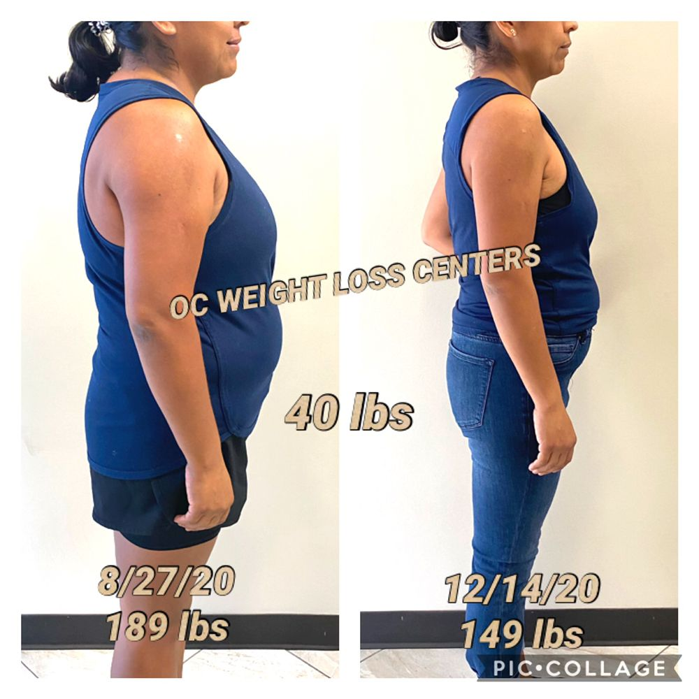 OC Weight Loss Centers and Coolsculpting
