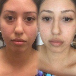 Steiger Facial Plastic Surgery - 13 Photos & 19 Reviews