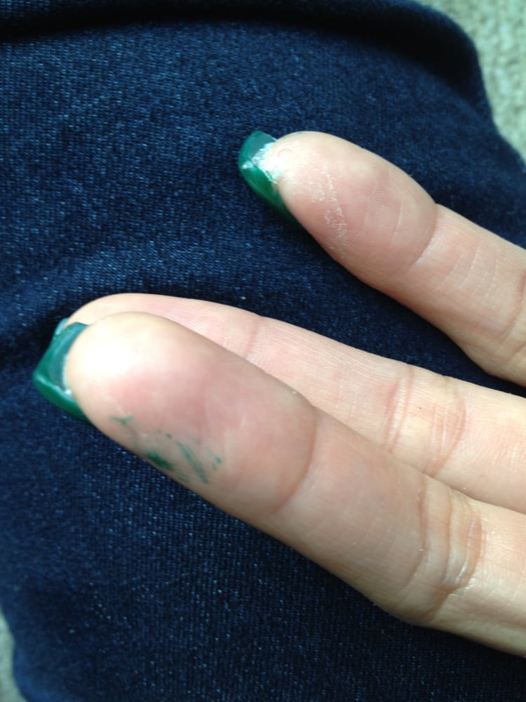 Photo Of K3 Nails And Spa Milpitas Ca United States Worse Nail