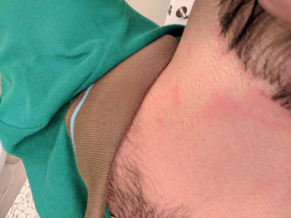 Abrasions On Back Of Neck Wanted A Neck Trim And Got A Skin Trim