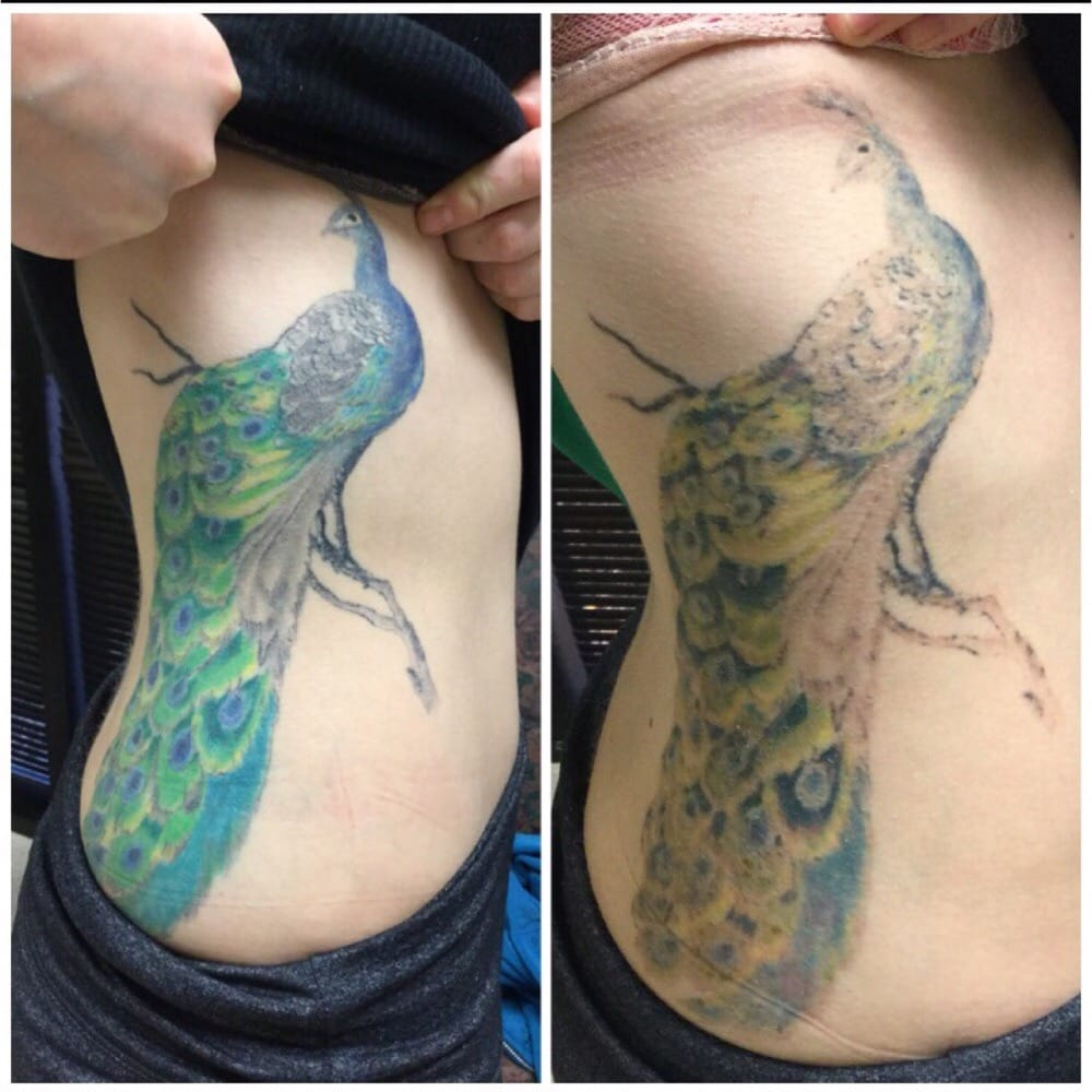 Before after one session with the pico technology laser for How long is a tattoo removal session