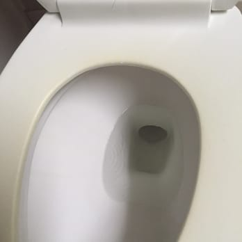 Astonishing Badly Stained Toilet Seat Stains Mildew Ring In The Bowl Ibusinesslaw Wood Chair Design Ideas Ibusinesslaworg