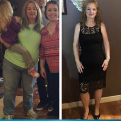 Roller Weight Loss Advanced Surgery Weight Loss Centers 8005 E
