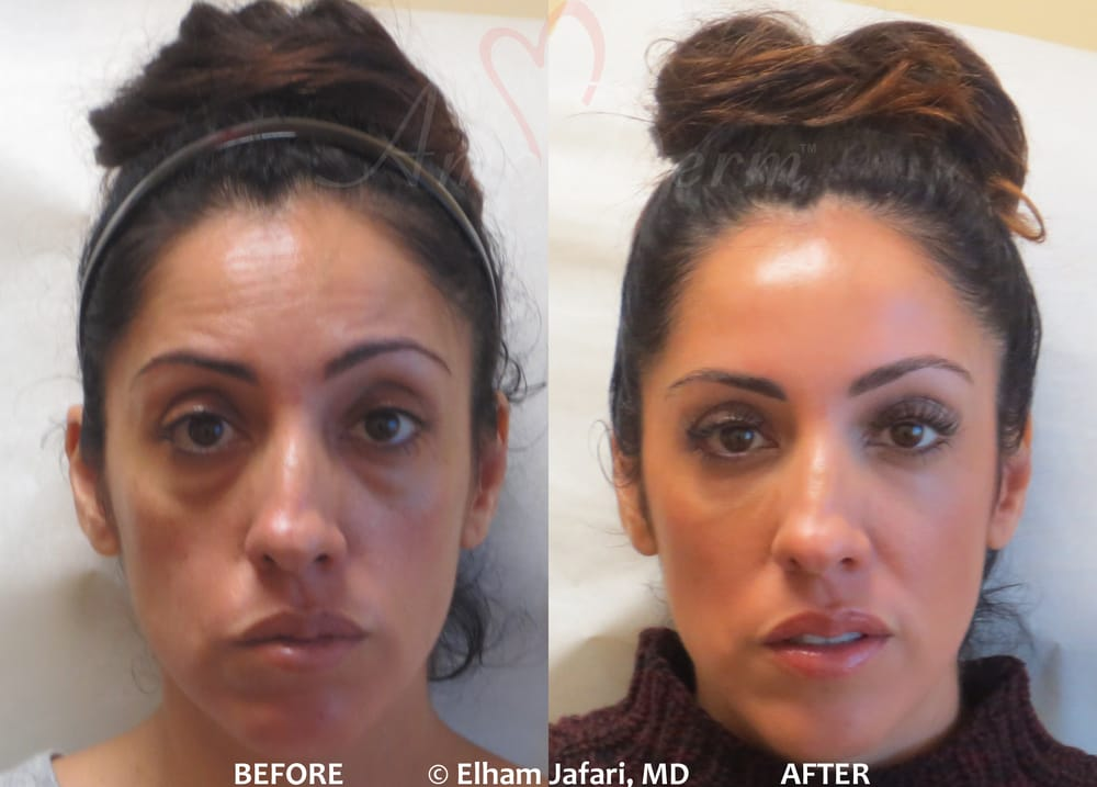 Liquid Facelift With Combination Of Botox Dysport At