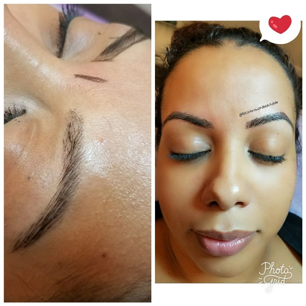 Before and after results of microblading  Picture on the