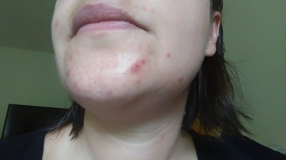 Facial skin 3 days after extraction (perfectly clear before