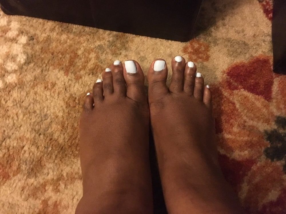 My right big toe extra short and digging into my skin. Hoping it ...