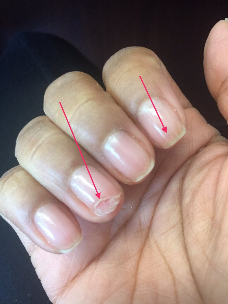 Ring finger where the nail tech cut off the white spot. Index finger ...