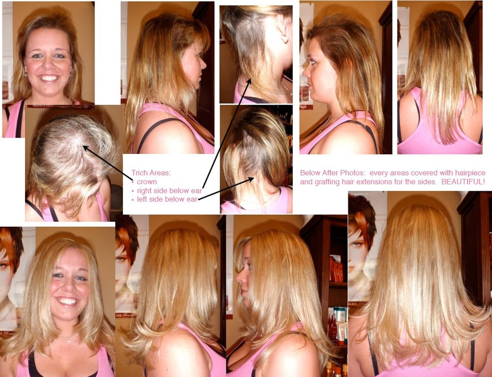 Thesecretmane 89 Photos Hair Loss Centers Hells Kitchen New