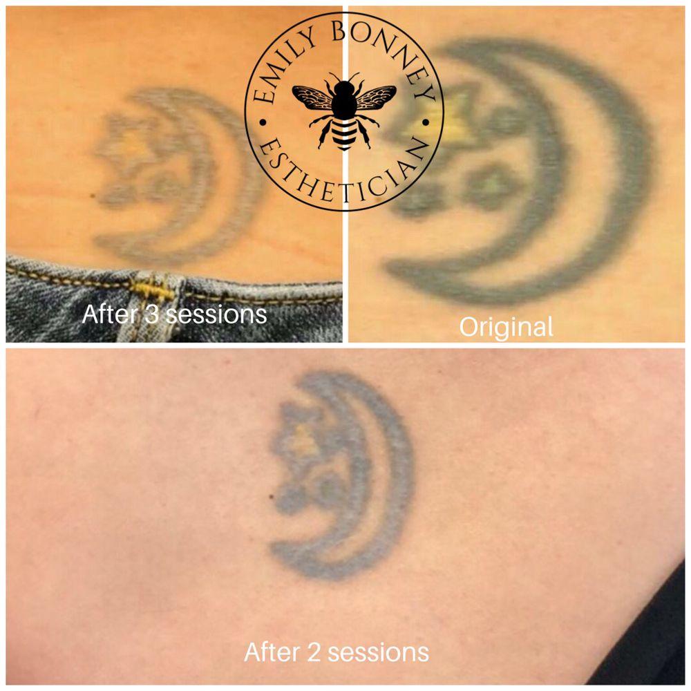 Progression of saline tattoo removal. - Yelp