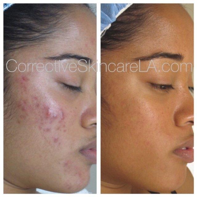 Corrective Skincare