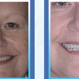 Evansville Dentist Pinhole Gum Rejuvenation Oral Surgeons 3335
