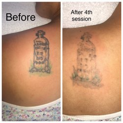 Tattoo Be Gone Sf  Reviews Tattoo Removal  Post St Second Fl Union Square San Francisco Ca Phone Number Yelp