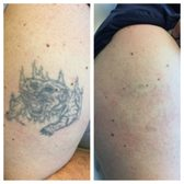 Invisible ink tattoo removers 11 photos tattoo removal for Invisible ink tattoo removal price