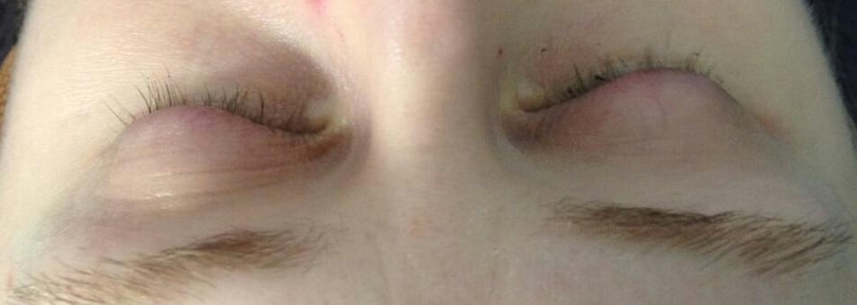 After The Eyelash Extensions Were All Removed Yelp