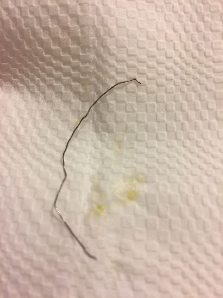 Found this metal wire in my shrimp burrito. Hoping I didn\'t swallow ...