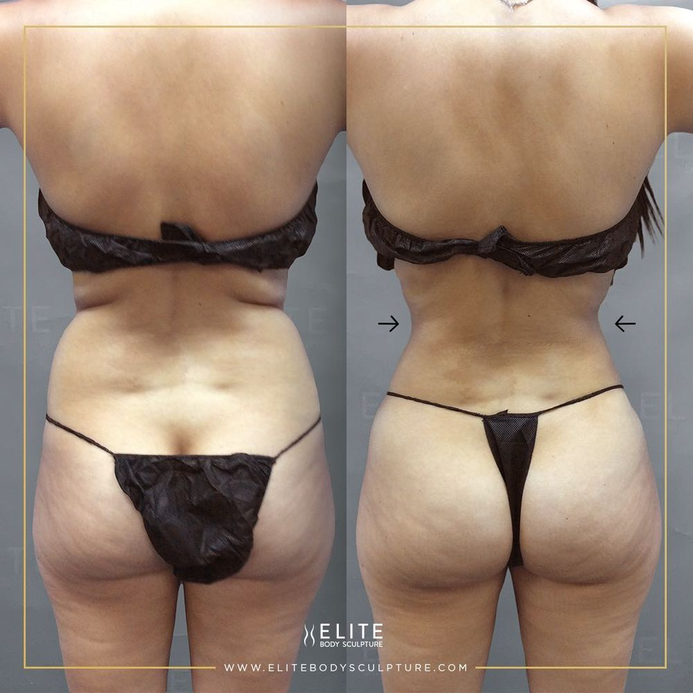 Elite Body Sculpture - Seattle: 500 108th Ave NE, Bellevue, WA