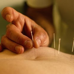 Bay Area Integrative Health Care Acupuncture 3756 Florence St