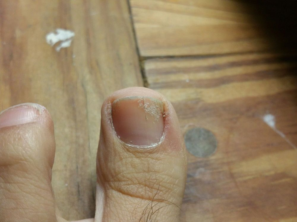 The nail fungus I picked up after getting a pedicure at this salon ...